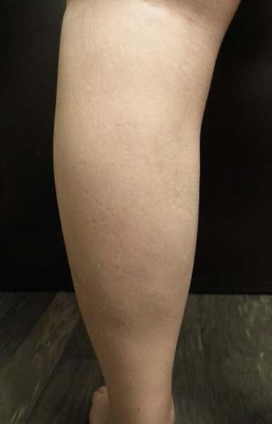 Kirkazon cum se vindecă rănile varicelor ,vene varicoase pe picioare inflamate