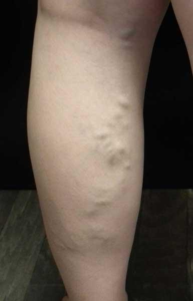 tratamentul cartofilor varicoză varicoză tablete de la varicoză și prețul lor